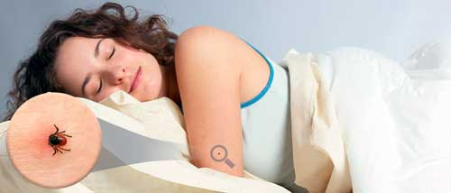picaduras de chinches en la cama